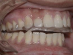 Nightguard on the Upper Teeth