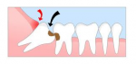 Enamel crown dissolving the roots of a second molar