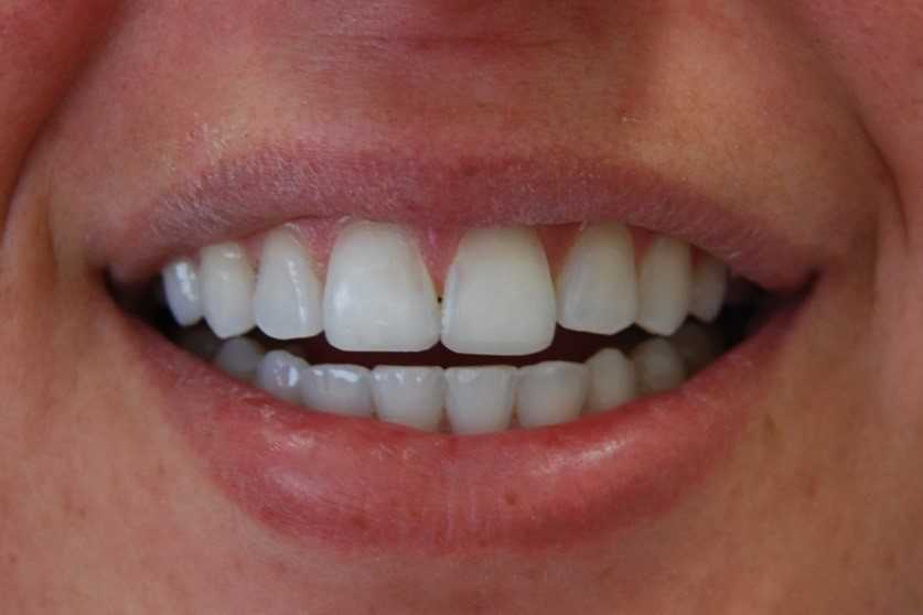 After Reverse Curve Teeth