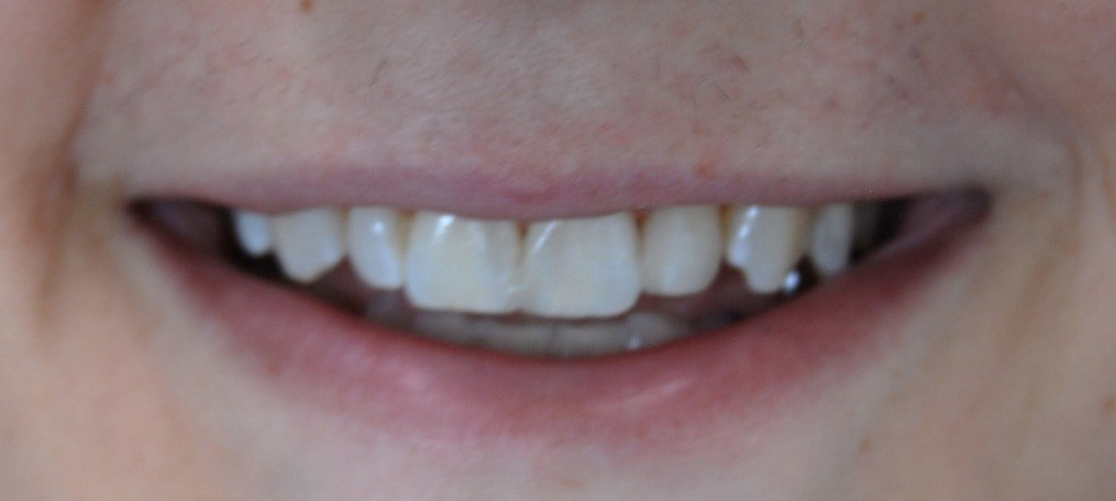 After Teeth Gaps Closed